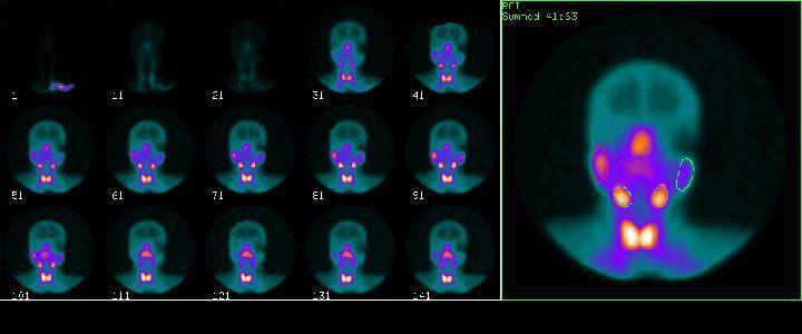 Gammagrafía de glándulas salivares