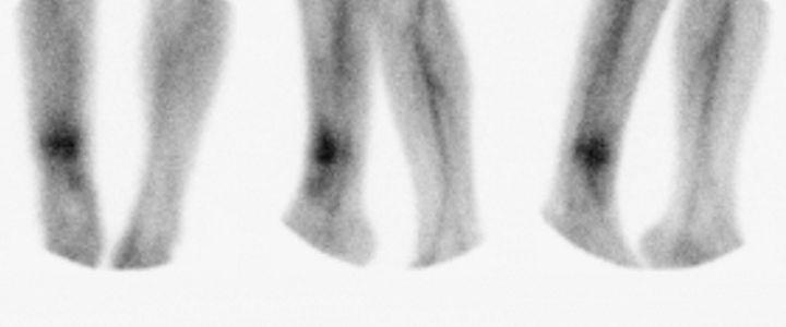 Gammagrafía con leucocitos marcados de unos tobillos