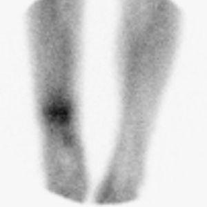 Gammagrafía con leucocitos marcados