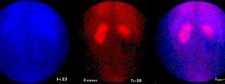 Gammagrafía de médula suprarrenal con 123I/131I-MIBG